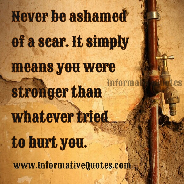 Never be ashamed of your Scar